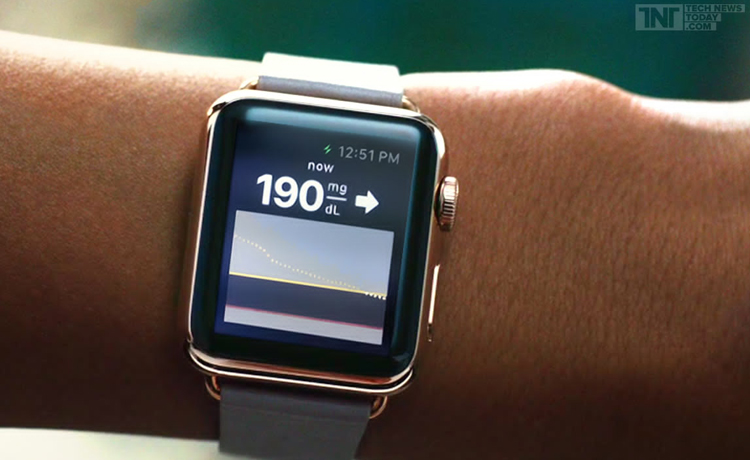 DexCom sur l'Apple Watch
