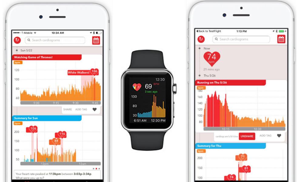 cardiogram-apple-watch