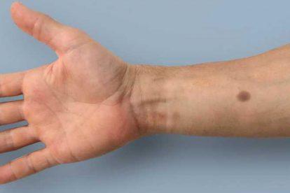 implant cancer